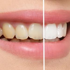 Phoenix Zoom teeth whitening